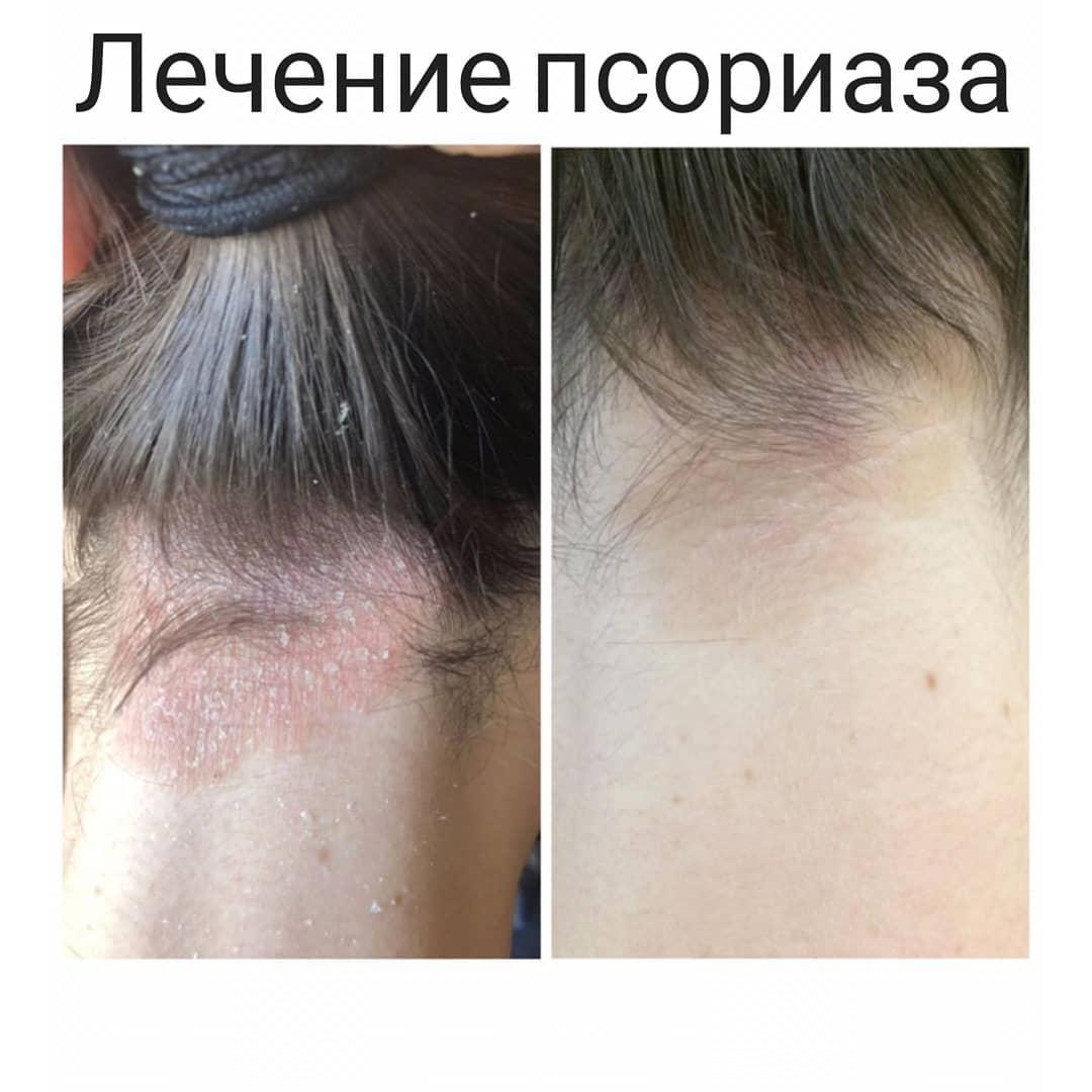 Аллергический псориаз фото
